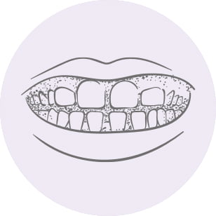 Teeth spacing picture