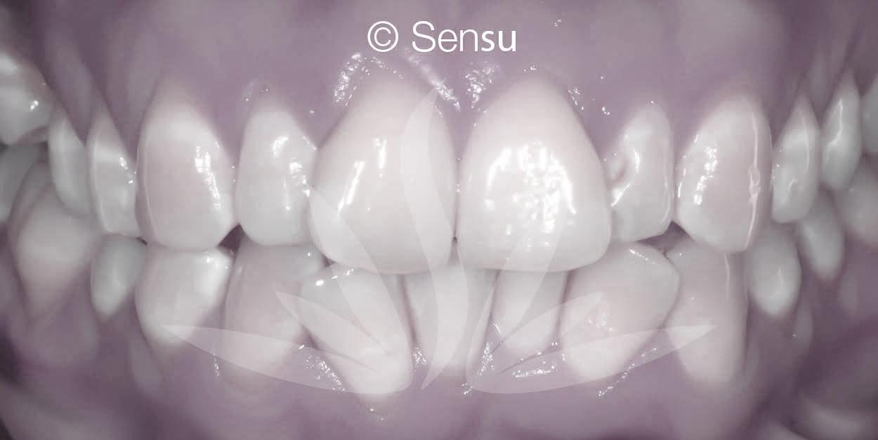 Before lingual braces
