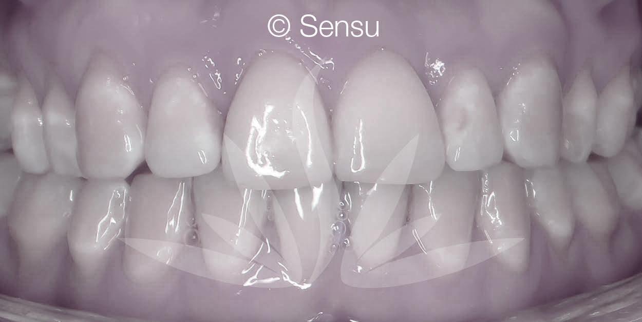 After lingual braces