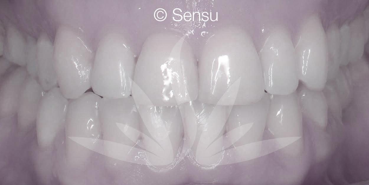 Lingual braces after
