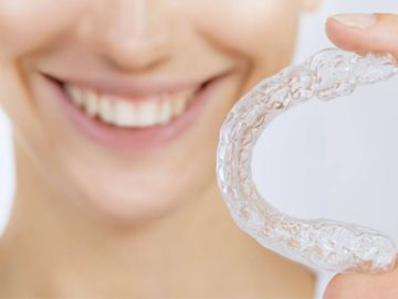 Are invisible braces available on the NHS