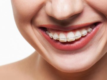 Caring for fixed braces