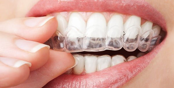 Clear retainers