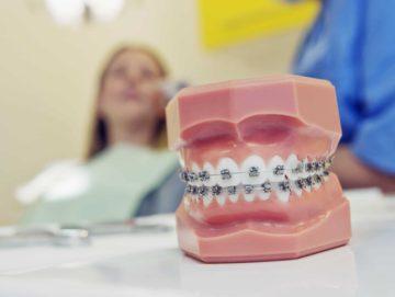 Dental terms