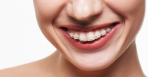 Cost of invisible fixed braces