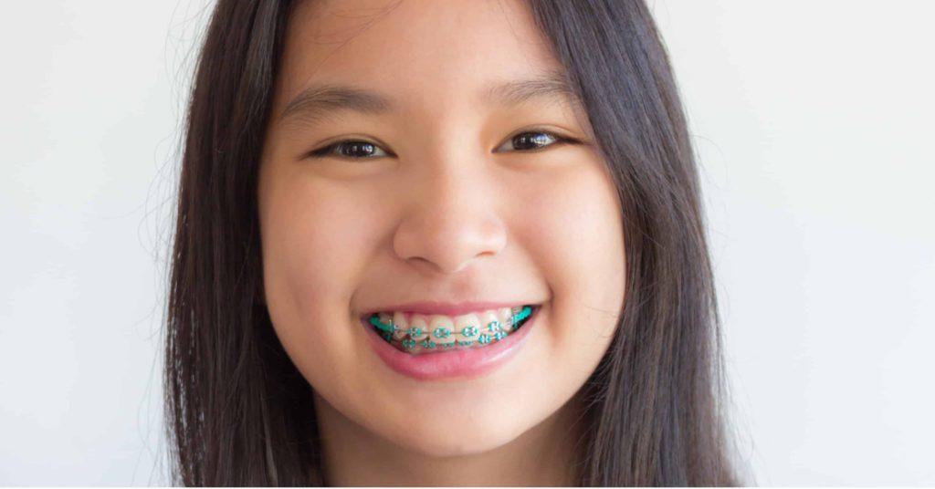 Orthodontics 101