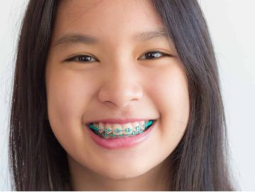 Orthodontics 101