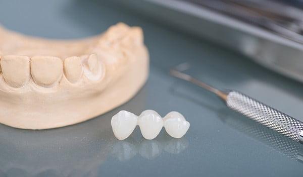 Teeth bridge