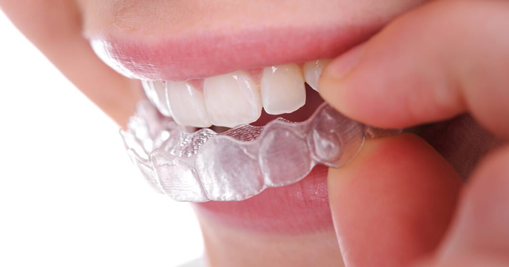 Invisalign Express in London