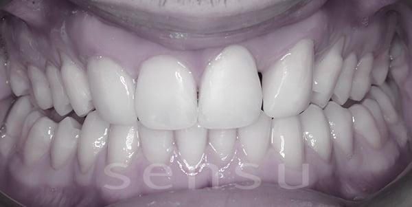 After teeth bonding