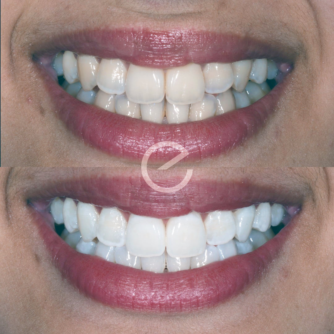 Enlighten whitening before and after