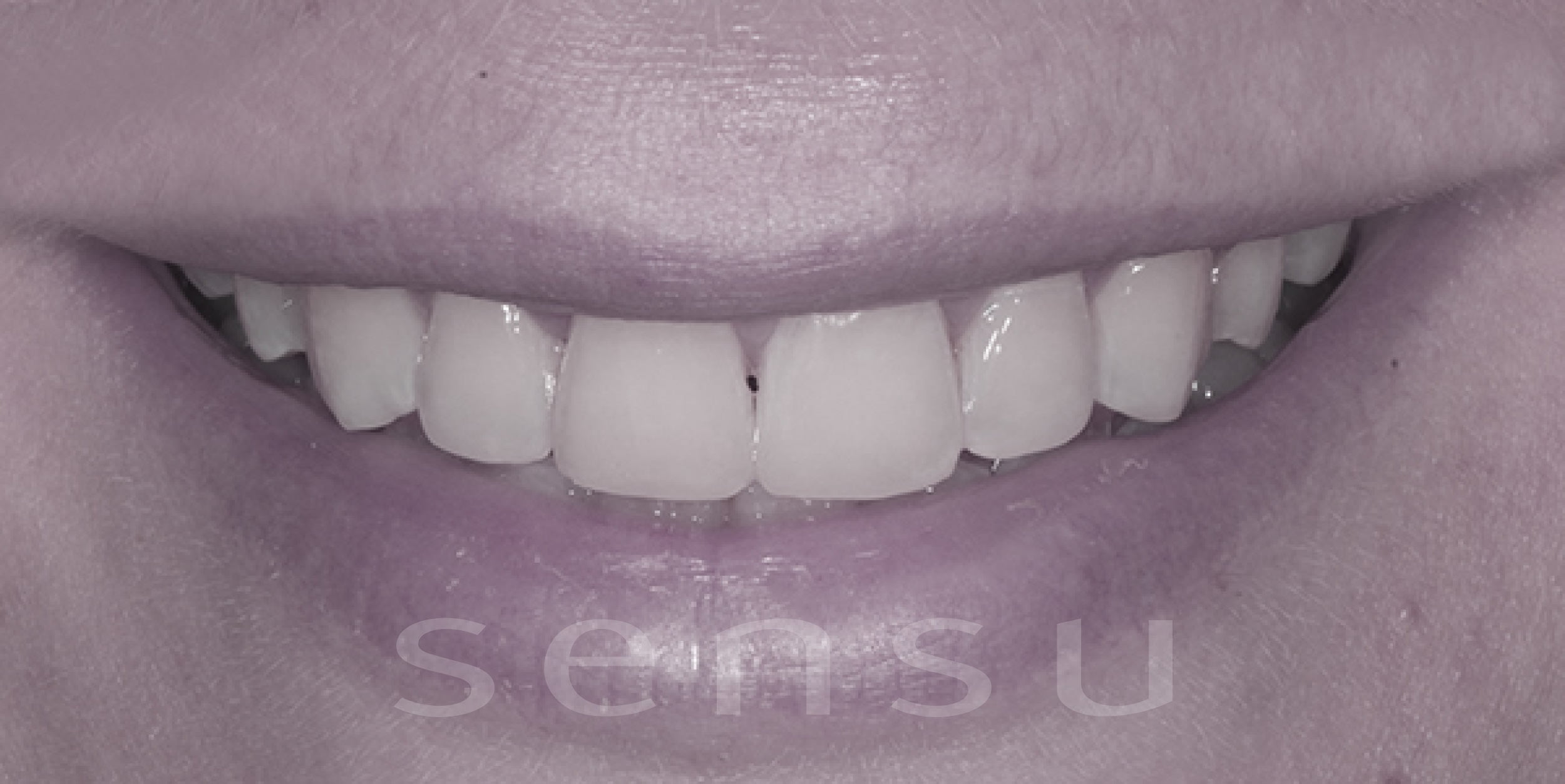 Teeth bonding after
