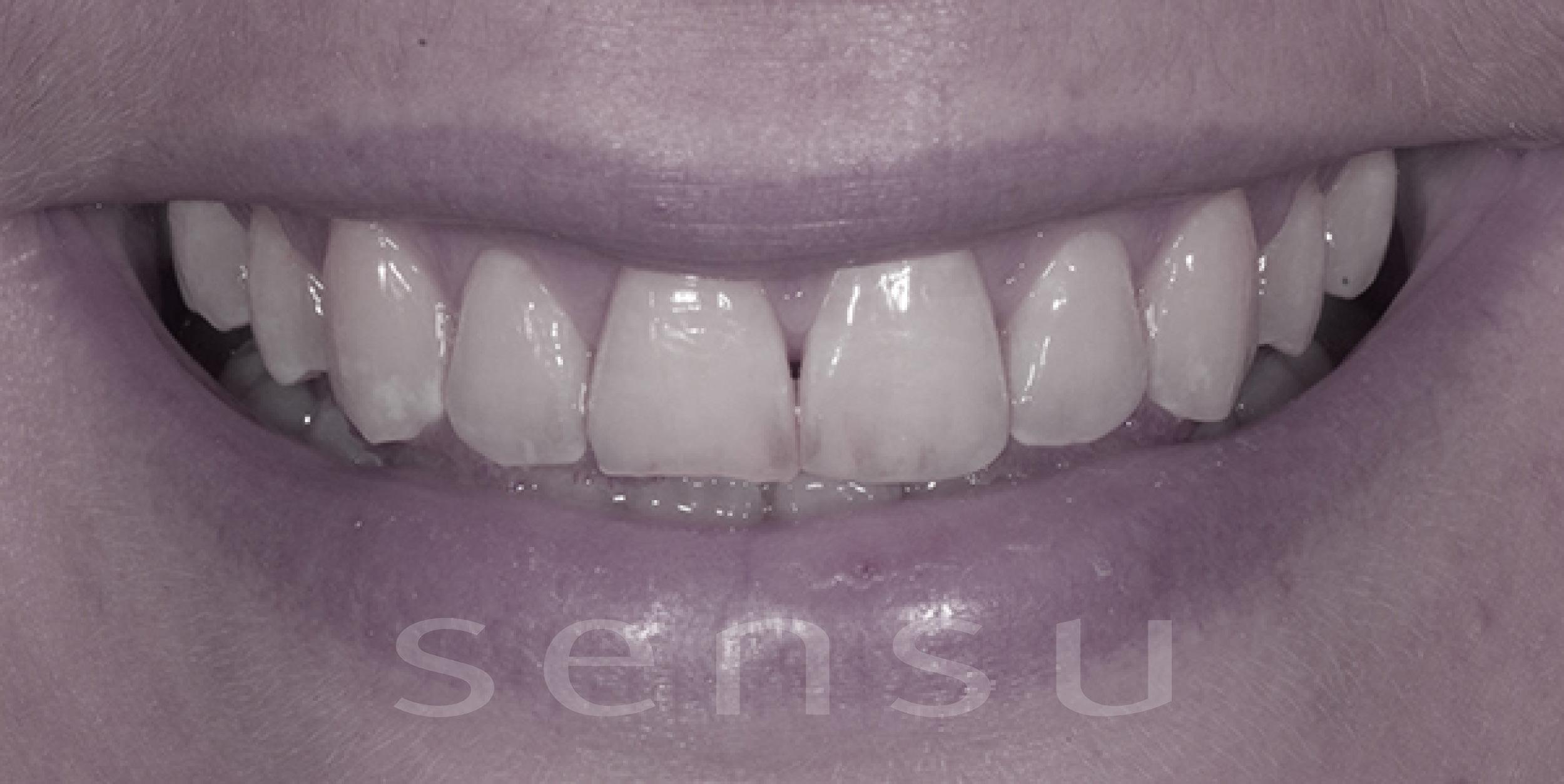 Teeth bonding before