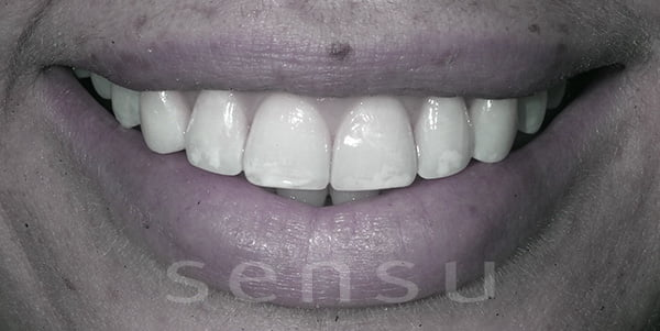 After tooth contouring